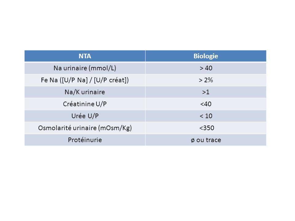 Fe Na ([U/P Na] / [U/P créat]) > 2% Na/K urinaire >1